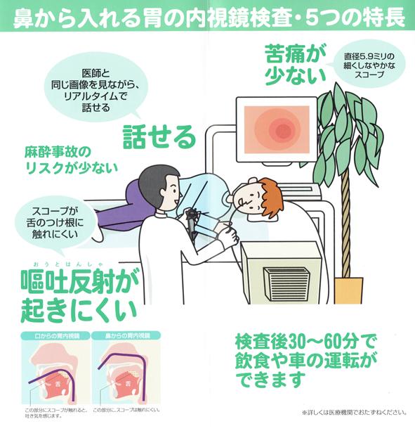 経鼻内視鏡検査の受け方